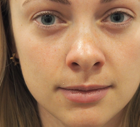 dermal fillers sherwood park